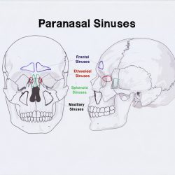 Paranasal Sinuses Brain Fog