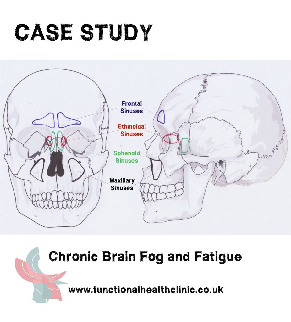 Case Study Chronic Brain Fog and Fatigue